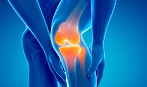 Physiotherapy and arthritis